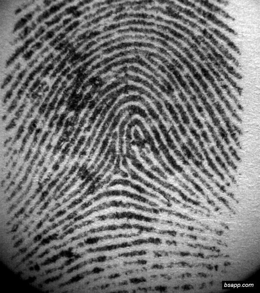Psychological and diagnostic significance of finger prints DSC00834