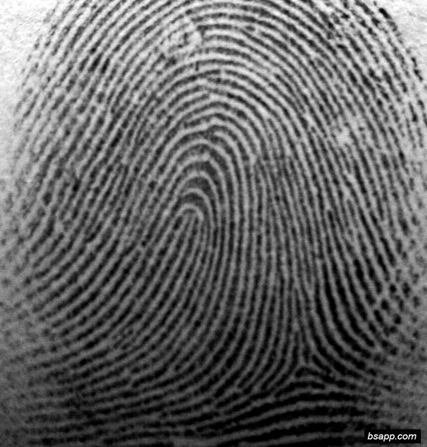 Psychological and diagnostic significance of finger prints DSC00979