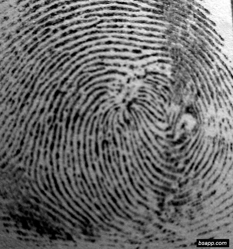 Psychological and diagnostic significance of finger prints DSC00931