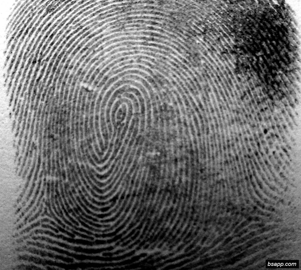 Psychological and diagnostic significance of finger prints DSC00971