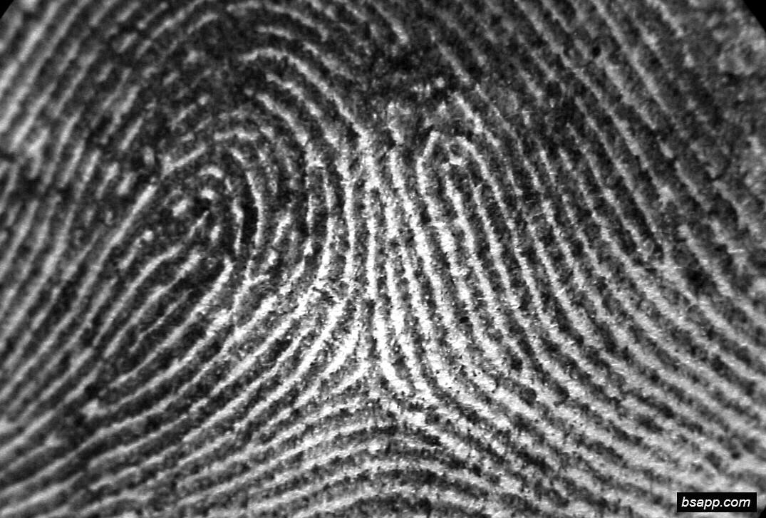 Psychological and diagnostic significance of finger prints DSC00983
