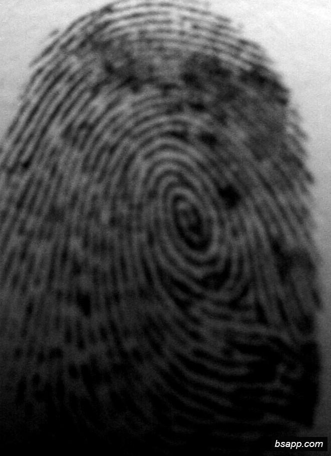 Psychological and diagnostic significance of finger prints DSC00930