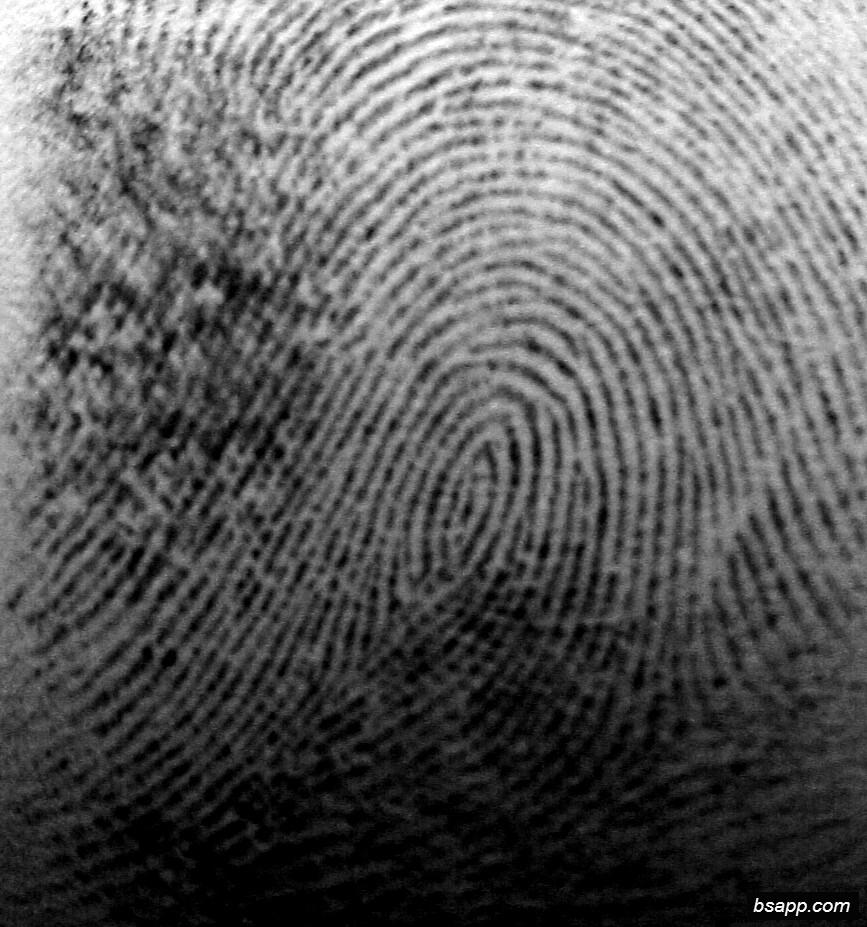 Psychological and diagnostic significance of finger prints DSC00941