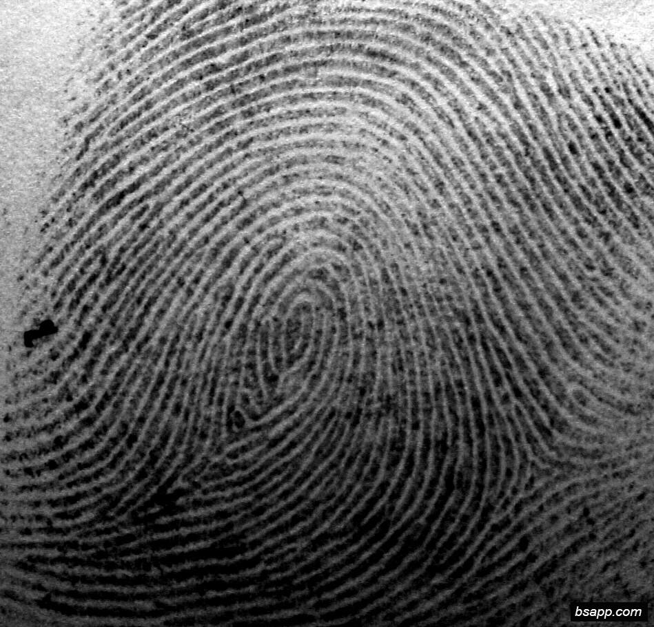 Psychological and diagnostic significance of finger prints DSC00952