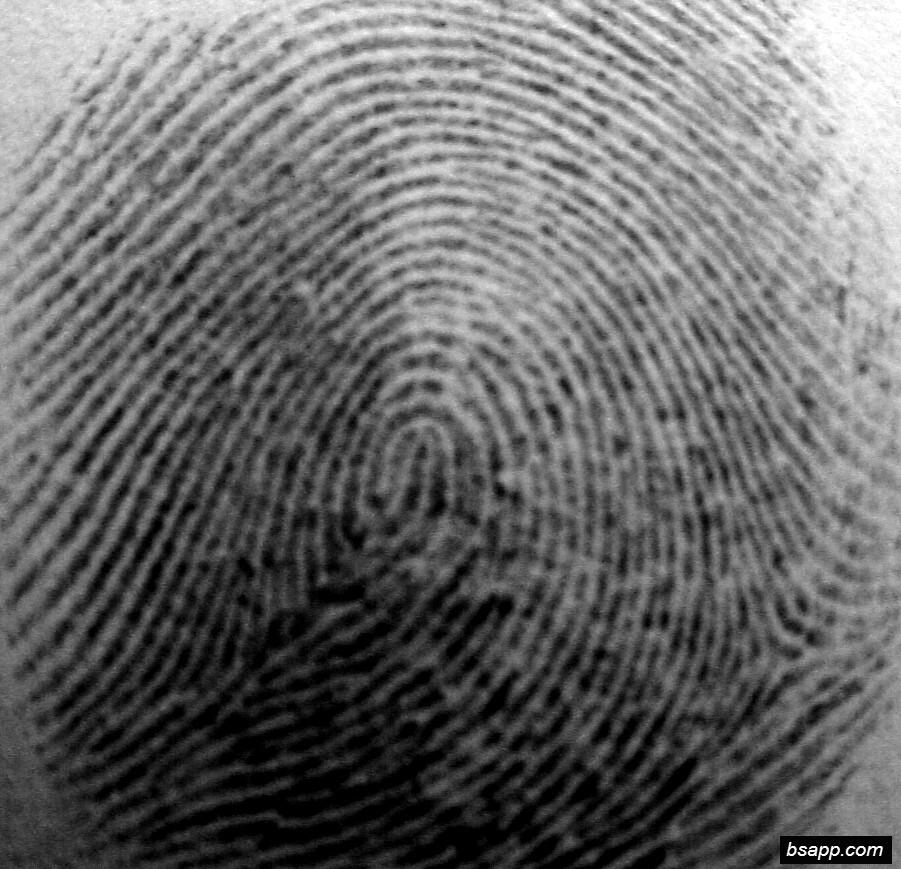 Psychological and diagnostic significance of finger prints DSC00959
