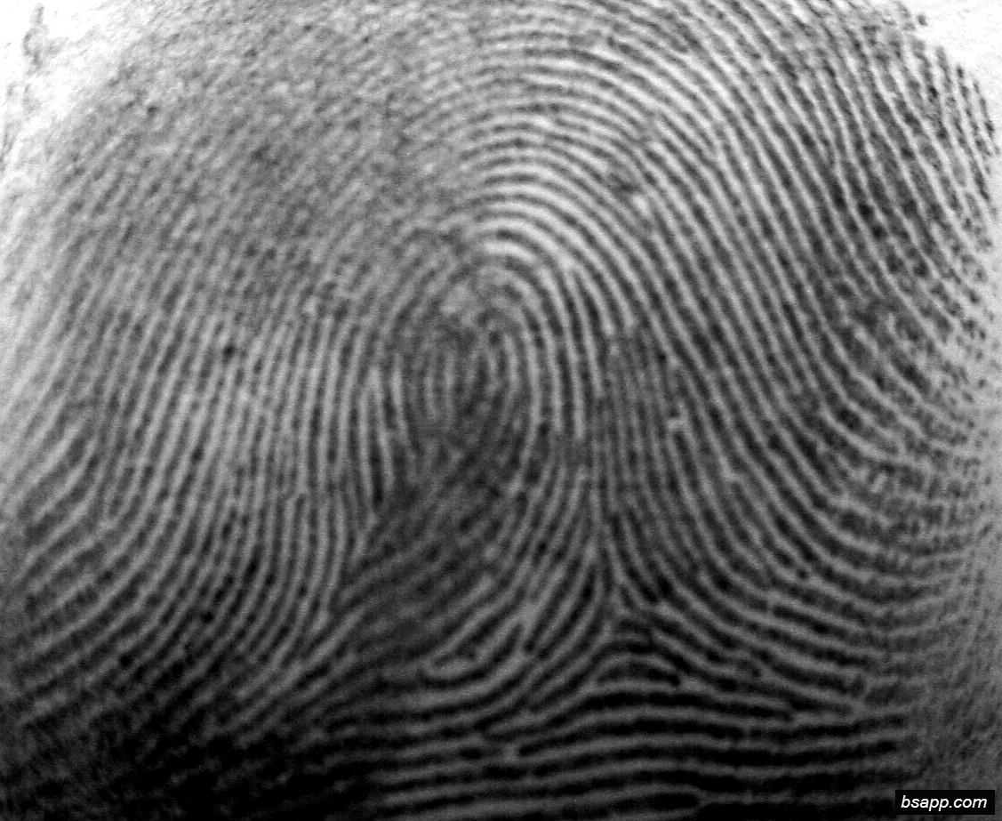 Psychological and diagnostic significance of finger prints DSC00977