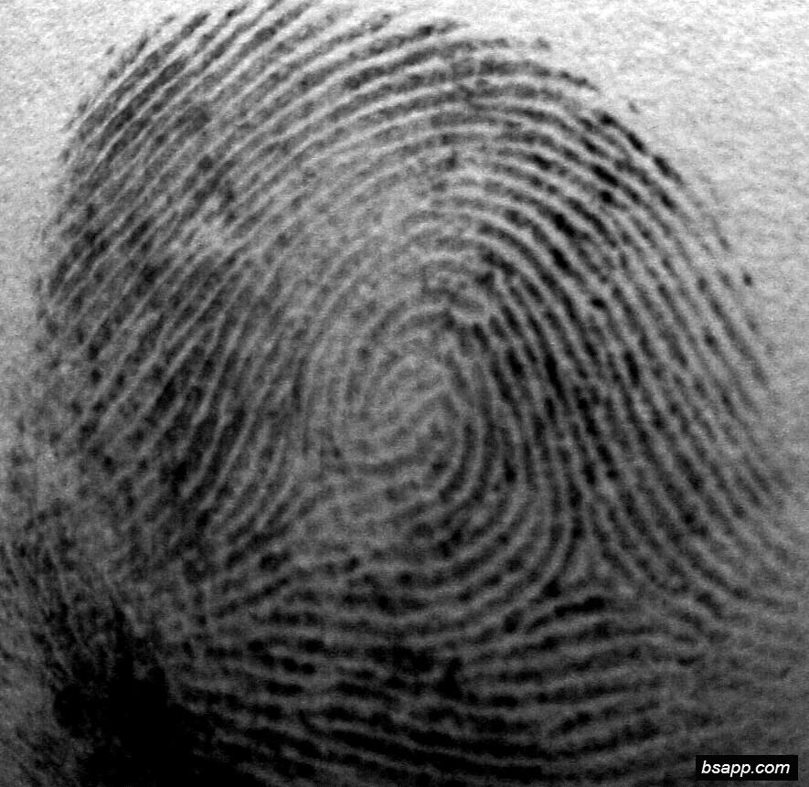 Psychological and diagnostic significance of finger prints DSC00945