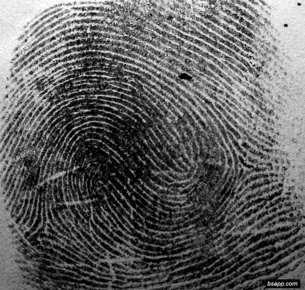 Psychological and diagnostic significance of finger prints DSC00953