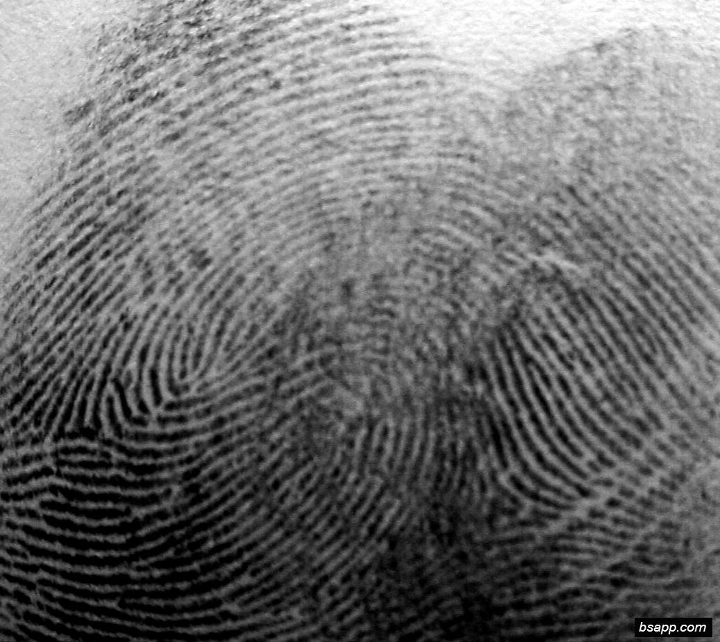 Psychological and diagnostic significance of finger prints DSC00992