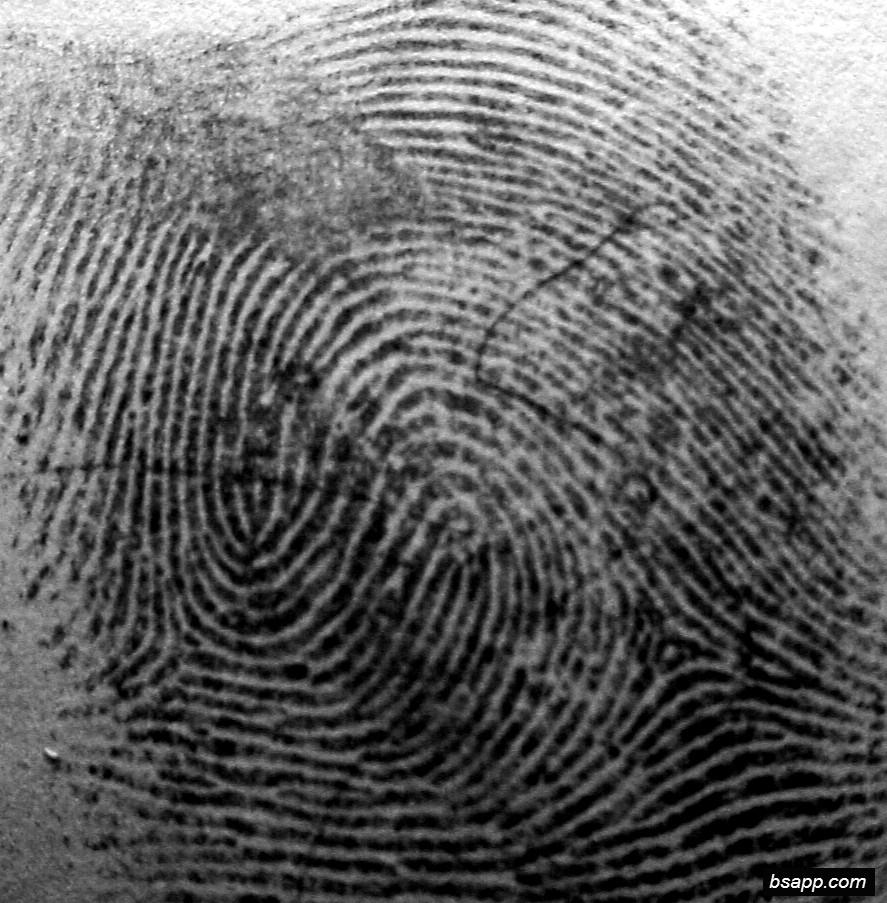 Psychological and diagnostic significance of finger prints DSC01000