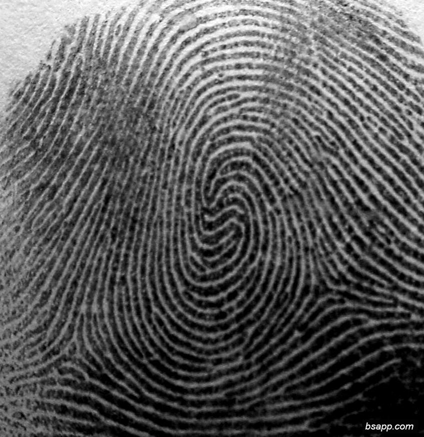 Psychological and diagnostic significance of finger prints DSC01017