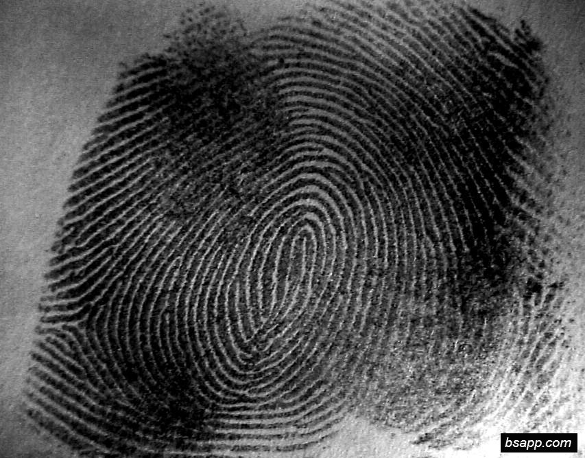 Psychological and diagnostic significance of finger prints DSC00847