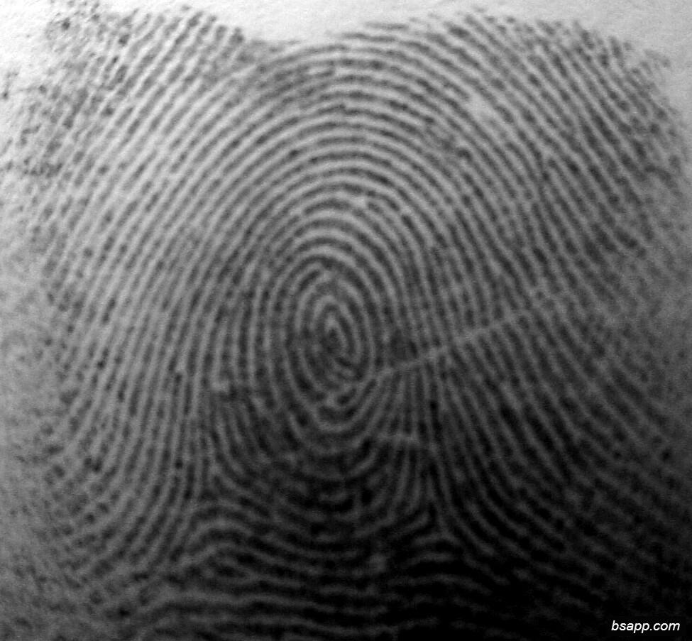 Psychological and diagnostic significance of finger prints DSC00978