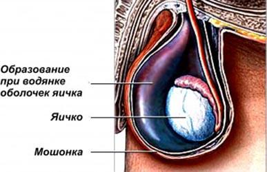 Водянка яичка у мальчиков. Vodjanka-300x194