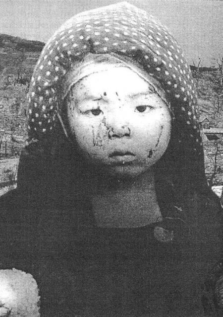 Le je-ne-sais quoi et le presque-rien, Yen-a-ki-dit-ouitch ? - Page 6 Hiroshima-child-450x638