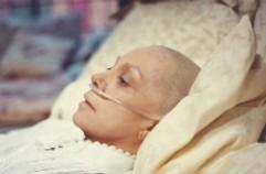 CRIATURAS DE OTRA DIMENSION - Página 6 Paciente_cancer_calva