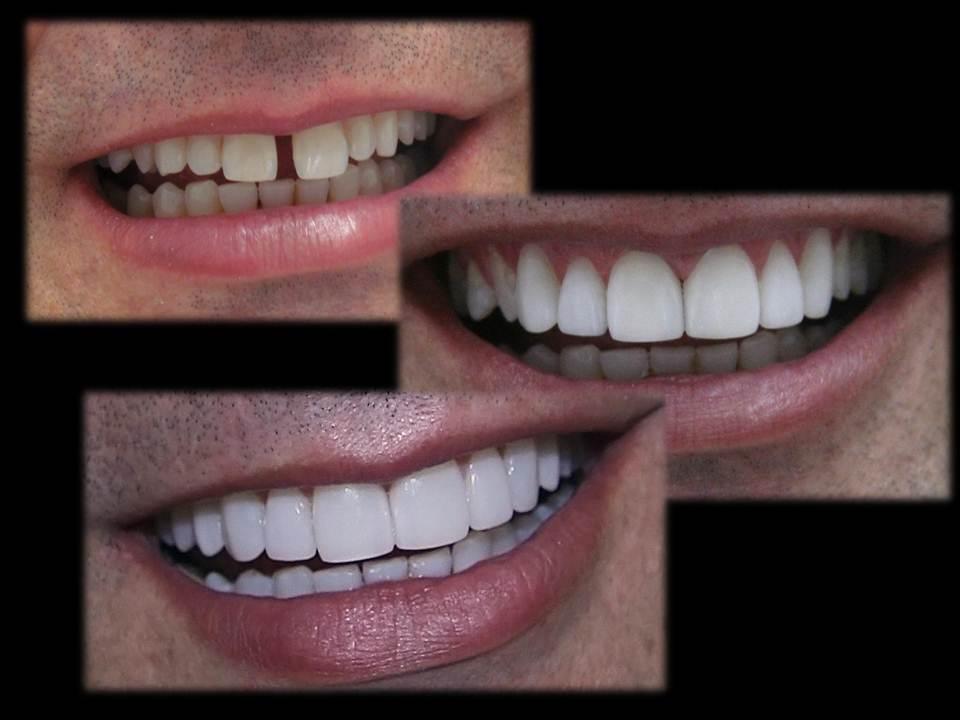 Lentes de Contato Dental Faceta