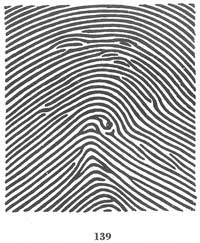 The TRIRADIUS in a fingerprint: how it develops, it's characteristics + a definition! - Page 4 Fig139