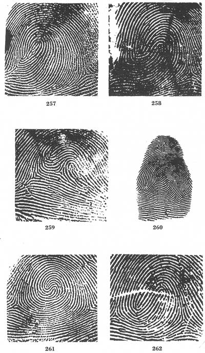Composites (= 'double loop' fingerprints) Fig257-262