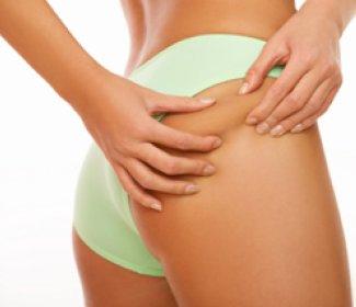 Liposukcija... zlatni standard nakon 30+ godina Alternatives-to-traditional-liposuction
