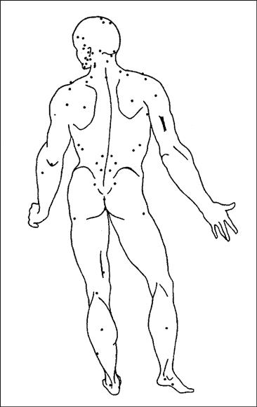 Акупунктура без иголок. Акупрессура. Точечный массаж 1013736-doc2fb_image_03000002