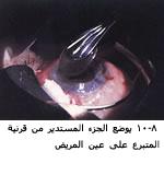 موسوعة متكامله عن امراض العين 04051608