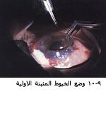 موسوعة متكامله عن امراض العين 04053809