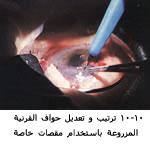 موسوعة متكامله عن امراض العين 04055110