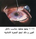 موسوعة متكامله عن امراض العين 04061611