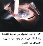 موسوعة متكامله عن امراض العين 04063112