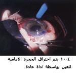 موسوعة متكامله عن امراض العين 04083604