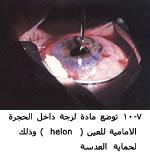 موسوعة متكامله عن امراض العين 04085507