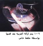 موسوعة متكامله عن امراض العين 04090906