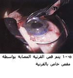 موسوعة متكامله عن امراض العين 04092405