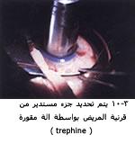 موسوعة متكامله عن امراض العين 04115203