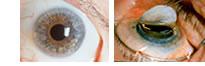 موسوعة متكامله عن امراض العين 055016med_img7