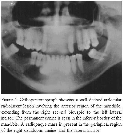 Rvision on Oral Pthology Slides Fig0114121