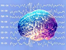 """RESONANCE DE SCHUMANN ET SIGNAUX """"RYTHMIQUE"""" DE LA TERRE Brain%20schumann%20resonance%20signal"""