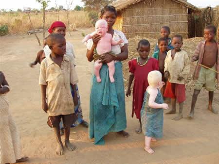 Vita barn blir mördade i Afrika. Familie-m-2-albino-kindern