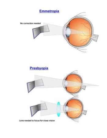 مد البصر الشيخوخي أو القدع Presbyopia PresbyopiaA