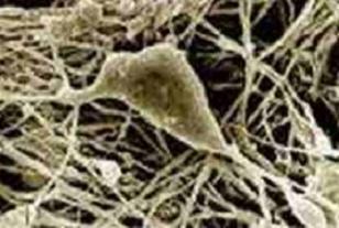 Kök hücre, radyasyonlu beyini onardı 62283