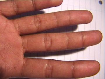 Fourth phalange on my little finger Extracrease4