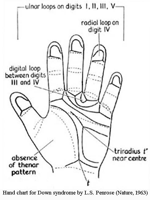 DOWN SYNDROME - The language of the hands! Hand-chart-down-syndrome-penrose-1963