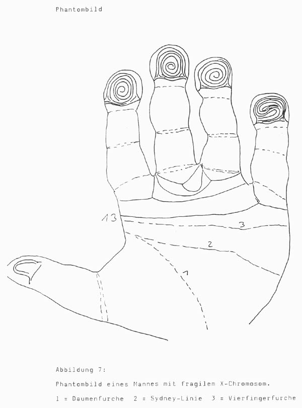 TOP 5 Hand signs in Fragile-X syndrome, co-occurs with autism in about 5% of cases! Hand-chart-fragile-x-syndrome-muller-1985