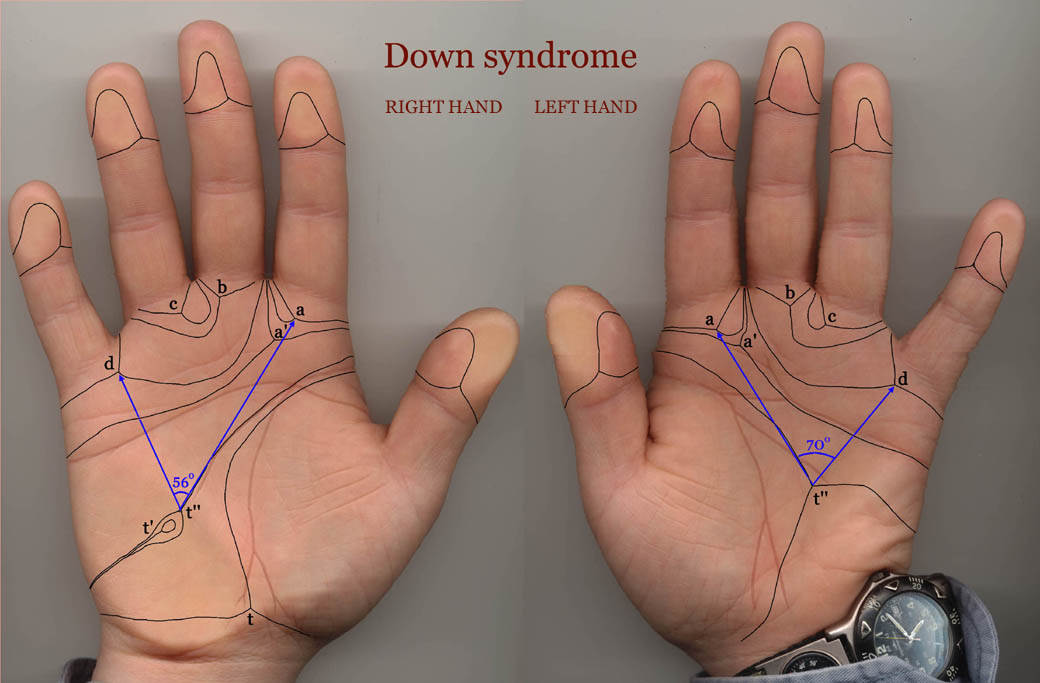 III - Thumbrule DMIT - IQ TEST: Does intelligence correlate with fingerprints & dermatoglyphics? Down-syndrome-1-small