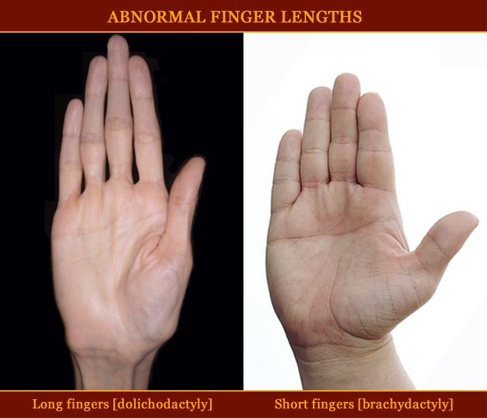 Which country has the largest hands in the world? - Page 2 Abnormal-finger-lengths-long-fingers-short