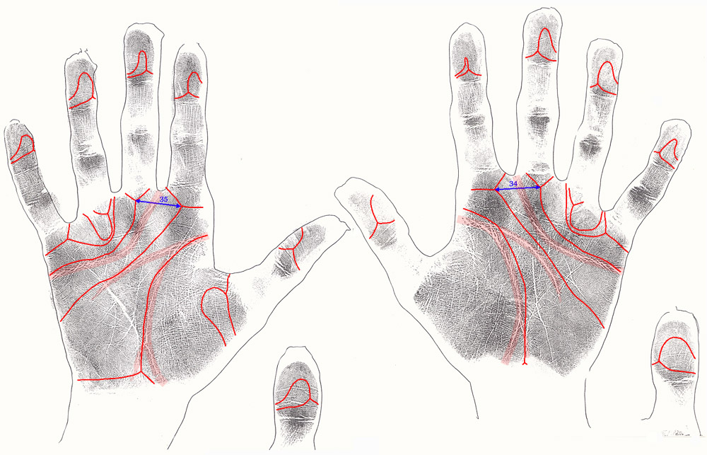 TOP 5 Hand signs in Fragile-X syndrome, co-occurs with autism in about 5% of cases! Fragile-x-syndrome-1-small