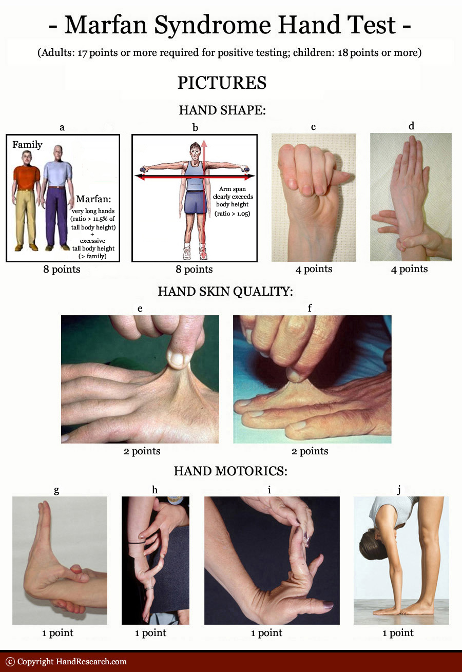 MARFAN SYNDROME - The language of the hands! Marfan-syndrome-hand-test