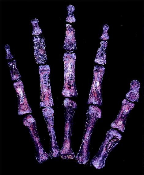 FINGER LENGTH SHOWS: Neanderthals were more competitive & promiscuous! Neanderthal-hand-qafzeh-9