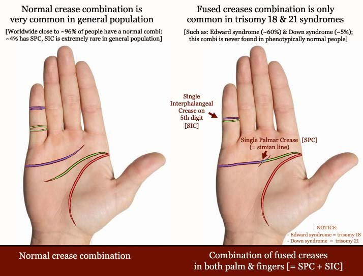 RARE HAND: single pinky crease!  Single-palmar-crease-single-interphalangeal-crease-5th-digit